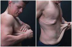 Diagnosticado com obesidade mórbida, John pesava 160 quilos. Após emagrecer, ficou com excesso de pele (Reprodução/YouTube)