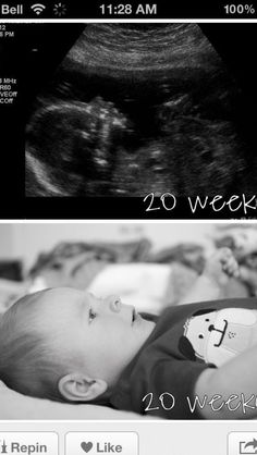 Baby in sogogram at 20 weeks, and baby getting changed at 20 weeks!!!!!