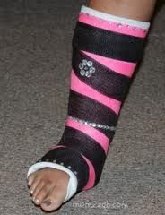 Decorate your cast with colored duct tape and blingy jewels!