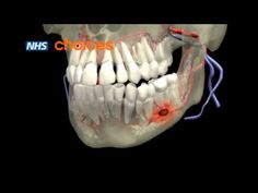 Tooth infection is also known as tooth abscess. It occurs because of the tooth decay. It is not caused by the bacteria but by unhealthy dietary habits.