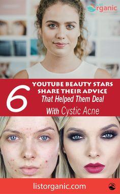 cystic acne Beauty Stars Share the Advice That Helped Them Beauty Tips, Beauty Hacks, Online Campaign, Beauty Youtubers, Healthy Beauty, Health Care, The Cure, Skincare, Advice