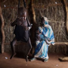 Battle-worn South Sudan copes with refugee health crisis – CNN Photos:  A malnourished child is weighed at the Ambulatory Therapeutic Feeding Center, run by Medecins Sans Frontieres, MSF, in Yida, South Sudan. (John Stanmeyer/VII)