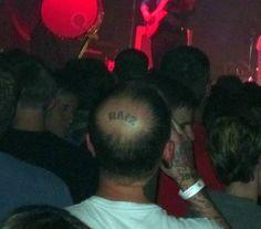 El mejor remedio contra la calvicie - Tattoo