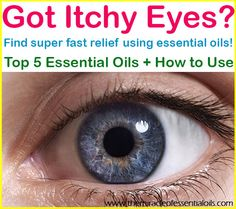 17 Best itchy eyes images in 2017   Natural Remedies, Natural