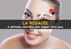 La rosacée (couperose): causes, symptômes et traitements naturels qui améliorent votre état de santé. Basés sur des références scientifiques.
