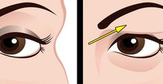 Voici comment traiter naturellement les paupières tombantes Here's how to treat drooping eyelids naturally. The results are beautiful Fix your beauty problems Face Mask Recipe Saggy Eyes, Droopy Eyelids, Beauty Secrets, Diy Beauty, Beauty Hacks, Beauty Tips, Natural Cures, Face Care, Cellulite