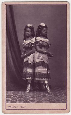 Millie-Christine McCoy born into slaveryin 1851..  Later toured the world.