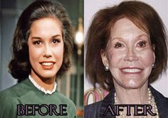 Mary Tyler Moore Bad Plastic Surgery Photos