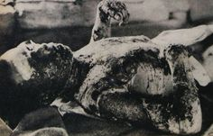 Victim of Hiroshima atomic bombing.