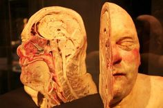 Yes, this is real, done by Plastination. Plastination is a technique or process used in anatomy to preserve bodies or body parts, first developed by Gunther von Hagens in 1977. The water and fat are replaced by certain plastics, yielding specimens that can be touched, do not smell or decay, and even retain most properties of the original sample.