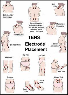 TENS unit electrode placement chart