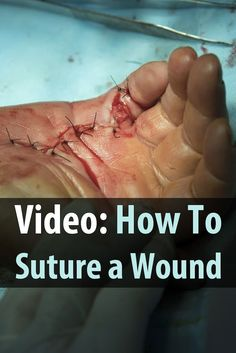 If you've never sutured a wound, it's a skill worth learning. Injuries are common after disasters, and in many scenarios there won't be a hospital to help.