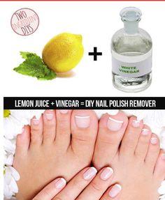 Natural And Simple DIY Nailpolish Remover #Fashion #Beauty #Trusper #Tip