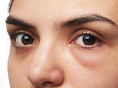 Das sind 8 Ursachen für ein juckendes Auge