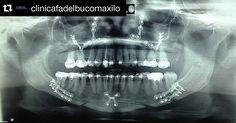 Radiografia pós operatório de Ortognática by @clinicafadelbucomaxilo #odonto #surgery #oralsurgery #oralsurgeon #dentist #dentista #dentistry #buco #bucomaxilo #maxillofacial #maxillofacialsurgery #odontoporamor #saudebucal #cirugiabucal #unigranrio #saogoncalo #niteroi #riodejaneiro #oralmedicine #cirurgiaoral #cirurgiaortognatica #humanteeth #dentalpicture #dentalphotography #dentalrepost by dentalrepost Our Oral Surgery Page: http://ift.tt/1Mj1b9g Google My Business: http://ift.tt/1NcAfTw…