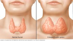 Goiter - Symptoms and causes - Mayo Clinic