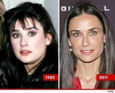 Demi Moore Plastic Surgery Before And After Demi Moore Plastic ...