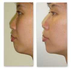 Botox for jaw reduction; Jaw before and after Botox