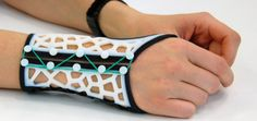 3ders.org - Software makes it easy to design & 3D print wrist splints for arthritis sufferers | 3D Printer News & 3D Printing News