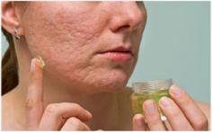 Kako ukloniti ožiljke od akni i bubuljica sa lica, potpuno prirodno - Recepti