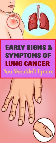 Early Signs And Symptoms Of Lung Cancer You Shouldn't Ignore !!!