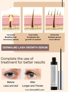 Result with Dermalmd Lash Growth Serum How To Grow Eyelashes, Eyelash Growth Serum, Natural Eyelashes, Rosacea, Chemist, The Cure, Fragrance, Perfume