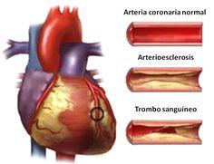 😍 Las grasas. Omega 3 y Omega 6. Corazón saludable. http://bienestarynutricionsana.blogspot.com/2015/02/las-grasas-omega-3-y-omega-6-corazon-sano-arterioesclerosis-grasas-buenas-malas-saturadas-insaturadas-poliinsaturadas-alimentos-cantidad-suplementos-herbalife.html?utm_campaign=crowdfire&utm_content=crowdfire&utm_medium=social&utm_source=pinterest