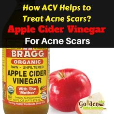 Apple Cider Vinegar For Acne Scars: How To Use Apple Cider Vinegar For Acne Scars, Get Rid Of Acne Scars Fast!