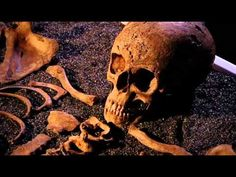 BBC - History Coldcase This particular episode is about a young woman living and died in the 1800's in London. It discusses what life was like for poor women. It also talks quite a lot about syphilis and its effect on the body. (The Great Scurge)