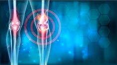 Suffering from osteoarthritis knee pain?Then, try our Osteoarthritis Knee therapy to get relief from your knee pain. Visit our website for more info. Mast Cell Activation Syndrome, Cells And Tissues, Virginia Commonwealth University, Department Of Veterans Affairs, Rare Disease, National Institutes Of Health, Knee Pain, Kids Health, Arthritis