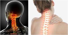 Neck Pain Treatment: This Unusual Stretch Relieves Stiff Neck in 90 Seconds! Neck Pain Treatment: This Unusual Stretch Relieves Stiff Neck in 90 Seconds! Oil For Headache, Tension Headache, Headache Relief, Pain Relief, Neck And Shoulder Pain, Neck And Back Pain, Neck Pain Treatment, Neck Problems, Sore Neck