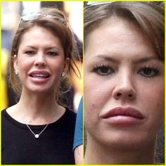 Nikki Cox had really bad celebrity plastic surgery. The before and after photos show that she had a facelift, Botox injections, and had way too many fillers in her cheeks.