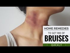How to Get Rid of Razor Bumps on Bikini Area Naturally Home Remedies For Bruises, Natural Home Remedies, Get Rid Of Bruise, Heal Bruises, Fresh Aloe Vera, Acne Spots, Skin Problems, How To Get Rid