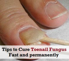 Tips to Cure Toenail Fungus fast and permanently