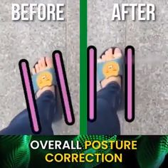 Our Silicone Hammer Toe Corrector will moves your toe back to the natural position. Also help keep your toes in place and prevent rubbing and pressure. Hammer Toe Correction, Posture Correction, Bow Legged, Muscle Imbalance, Feeling Depressed, Silicone Gel, Natural Treatments, Health Tips, The Cure