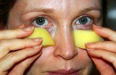 Avoid Botox: How To Remove Eye Bags & Wrinkles In 1 Minute Vicks Vaporub, Skin Care Regimen, Skin Care Tips, Rheumatische Arthritis, Get Rid Of Spots, Younger Skin, Les Rides, Homemade Face Masks, Skin Food