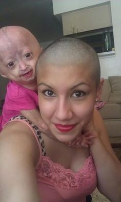 Her daughter has a disease called Progeria, so this mom shaved her head so she wouldnt feel so alone. Give her a LIKE for being so strong and amazing.