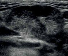 Submandibular gland in Sjögren syndrome Parotid Gland, Thyroid Gland, Thyroid Ultrasound, Salivary Gland, Assessment, Biology, Snapchat, Medicine, Ultrasound