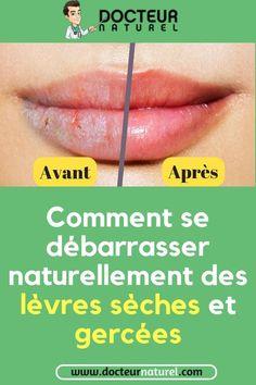 Lèvres gercées, lèvres sèches : 5 soins naturels pour retrouver des lèvres roses#levres#gercée#seches#remede#grandmère