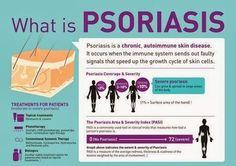 PSORIASIS TREATMENTS & TIPS | MY STORY