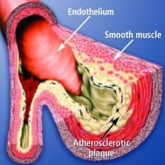 Natural Cure For Clogged Arteries