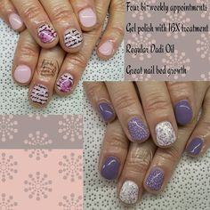 Gel polish doesn't ruin your nails... Improper removal techniques do. Make sure your services are done by a licensed professional.  Four bi-weekly appointments of gel polish  IBX treatments and regular Dadi Oil. .  #nails #nailedit #nailstoinspire #nailsdone #nailart #nailsalon #nailsbymarieb #nailforyummies #naildesign #nailsoftheweek #nailpolish #nailstyle #nail shop #NailsNailsNails #Nailsaddict #gelpolish #nailprodigy #shortnails #scra2ch #ibxnails #bittennails #damagednails #ibxnails by…