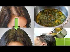 No joke! Use this remedy and let your hair grow in 10 days - Körperpflege - Accesorios para Cabello Diy Beauty, Beauty Skin, Health And Beauty, Beauty Hacks, Curly Hair Styles, Natural Hair Styles, Rides Front, African Braids Hairstyles, Pinterest Hair