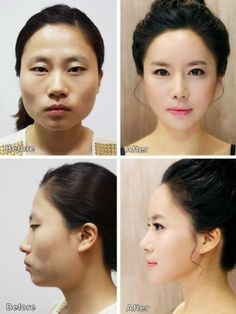 Uk Celebrity Gossip New Magazine ~ : Korean Plastic Surgery: Before and After