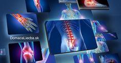 Niektoré potraviny bolestí kĺbov liečia a zmierňujú. Sú však aj také, ktoré problémy ešte viac zhoršia. Týchto 10 je pre vaše kĺby najhorších.