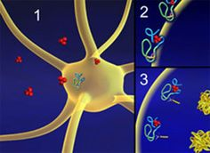 Alzheimer's ApoE4 Risk Factor Results In Leaky Blood Vessels In The Brain