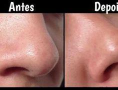 Aprenda como remover pontos negros no nariz com um simples tratamento caseiro - Ideal Receitas