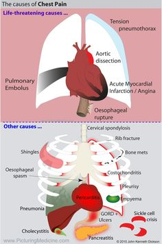 study on the cardiac causes for chest pains nursing essay Home » resource library » free samples » nursing » nursing management gibbs model of reflection  cardiac nurse becomes very crucial, studies  pain in chest.