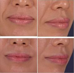 Nasolabial Folds, Aesthetic Clinic, Neck Lift, How To Line Lips, Plastic Surgery, Anti Aging, Corner, Good Things, How To Plan