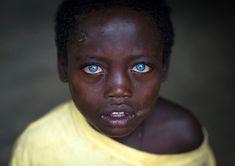 Ethiopian boy called Abushe with blue eyes suffering from waardenburg syndrome, Omo valley, Jinka, Ethiopia Most Beautiful Eyes, Beautiful People, Beautiful Children, Beautiful Babies, Albinism, Light Eyes, Belleza Natural, Pretty Eyes, Ethiopia